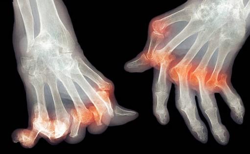 arthrose-main-doigts
